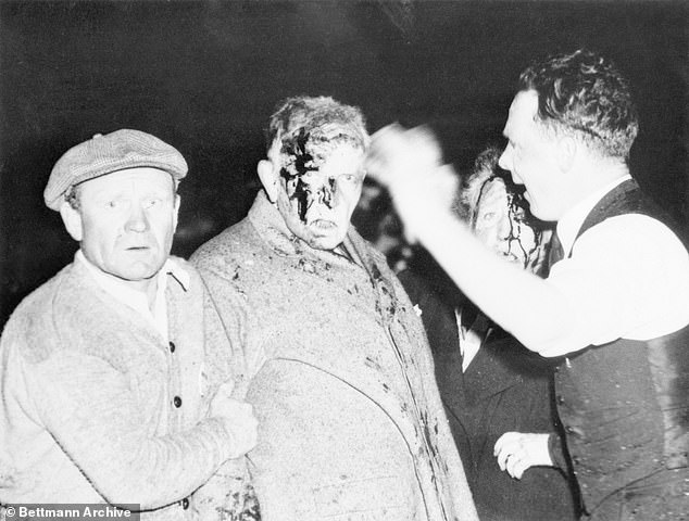 A survivor is treated for burns following the disaster on May 6, 1937