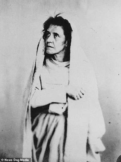 Before shot of a patient known as S.G, when she was admitted to Bedlam Asylum