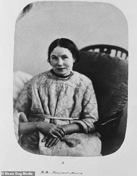 Before shot of Emma Riches, aged 27-years-old, when she was admitted to Bedlam