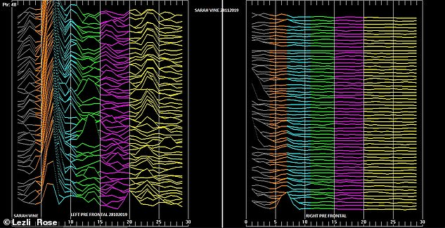 Sarah's brain function graph — the peaks and troughs on the left might explain her lifetime struggle with numbers